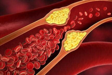 vaso sanguigno arteriosclerosi
