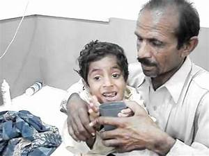 Rabies - Hydrophobia in a child ...MATLI..Sindh Pakistan ...
