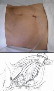 Image Showing Suprapubic Operative Wound With Cystostomy Catheter And