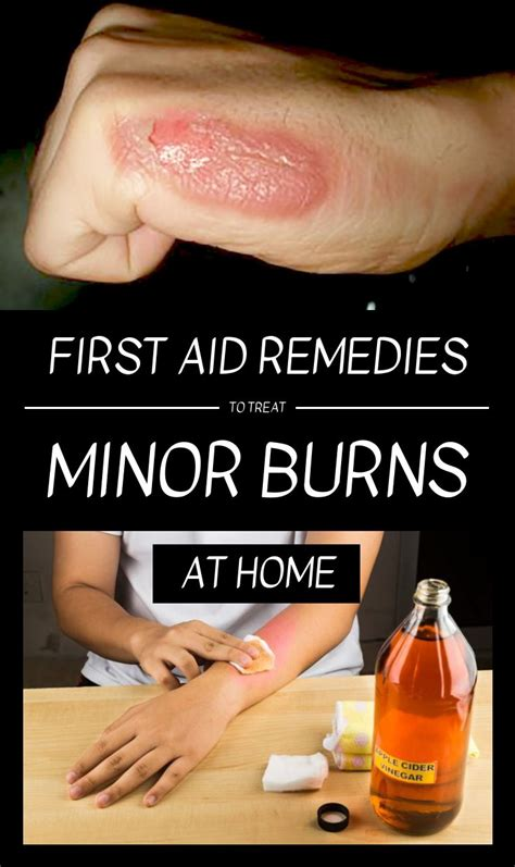 First Aid Remedies To Treat Minor Burns At Home | Home ...