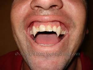 Teeth by Dnash custom vampire fangs, werewolf teeth, and ...