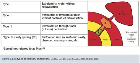 Your Wire Went Where? Coronary Perforation With Tamponade ...
