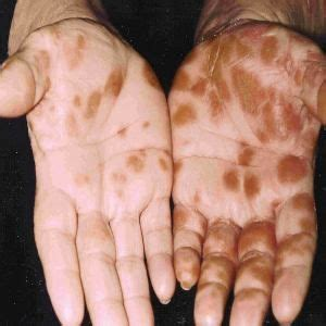 remedes naturels pour le pityriasis rose