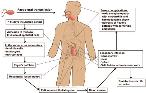 dissemination   typhi  systemic infection