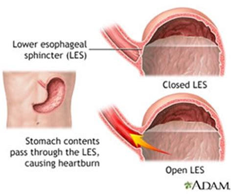 Diagram Of The Lower Esophageal Sphincter by Demystifying Quot Heartburn Quot Calgary Naturopathic