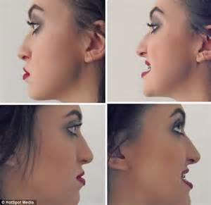 'People called me Jaws' : Woman, 20, has surgery to have ...
