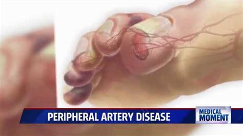 symptoms  treatments  peripheral artery disease pad