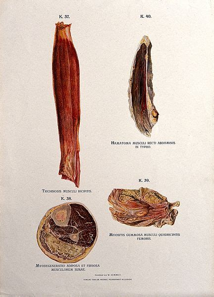 filediseased muscles trichinosis hamartoma syphilis