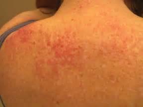 Dermatomyositis - OnlineDermClinic.com Hydroxyurea