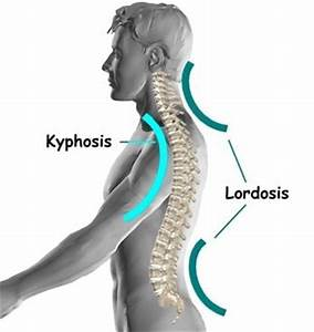 Lumbar Lordosis - Exercises, How to Fix, Treatment, What is