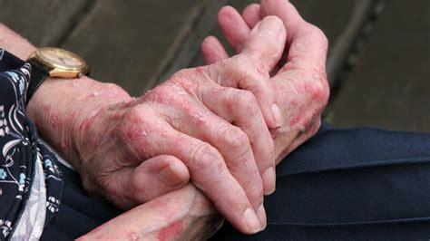 kontaktallergie im akuten stadium als kontaktdermatitis