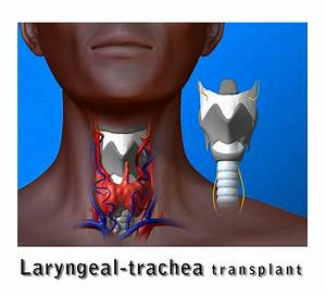 Extraordinary Larynx Transplant Restores Voice  Sense Of