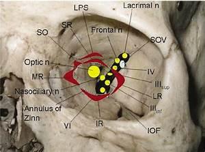 Anatomy Of The Left Orbital Apex  Highlighting The