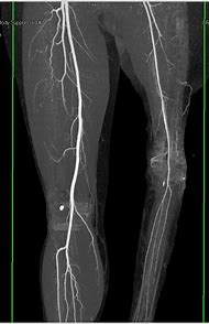 Best 25 ideas about lower extremity find what youll love lower extremity angiogram anatomy cta aorta with runoff lower extremity sciox Image collections