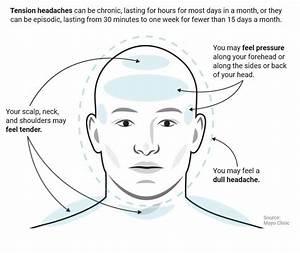 Headache Forehead Pressure