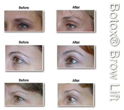 botox between the eyebrows before and after