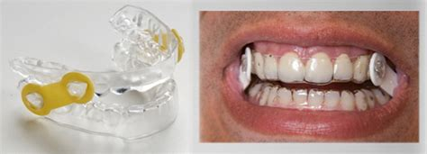 Oral Appliance Therapy For Sleep Apnea