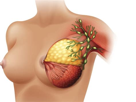 Breast Lumps Causes Types Checking And Treatment