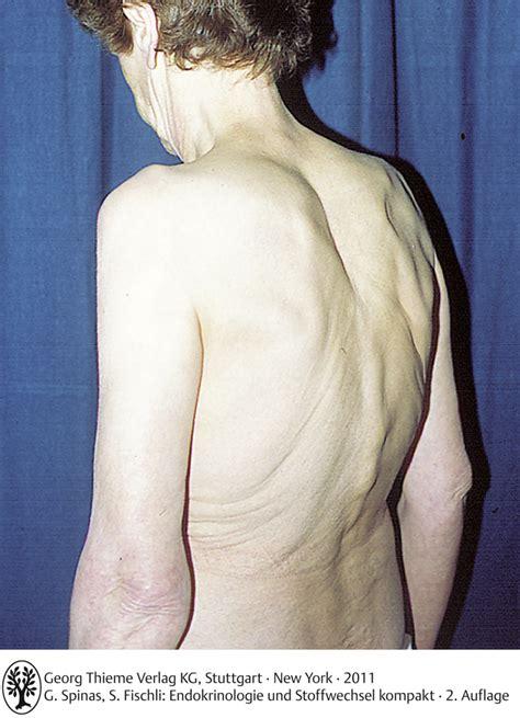 erkrankungen des knochenstoffwechsels endokrinologie und
