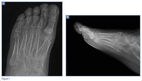 Emergency Imaging: Right hallux pain   MDedge Emergency ...