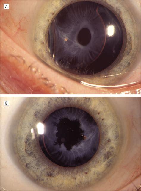 retinopathy  prematurity      problemthe