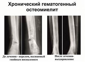 Коленный сустав боль при подъеме по лестнице