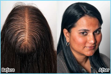 Hairstyles For Older Women With Thinning Hair Hairstyles With Heavy Highlights Hair Loss Treatment Qvc Simple Style Pakistan Tutorial Disney Medium Men Cute For Party Little Boy Haircut How To Kim Kardashian Get