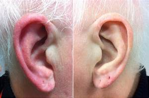 Red Ear Syndrome