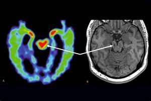 Mri Scan May Help Diagnose Chronic Traumatic
