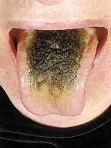 Black disease hairy tongue