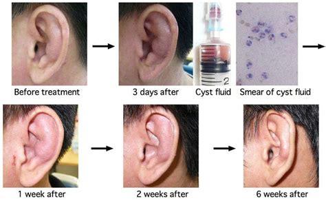 tumore all orecchio interno sintomi orecchio