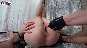 Fisting And Hardcore Sex With Creampie Closeup XNXX COM
