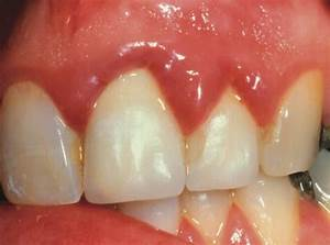 Gingivitis - Causes, Symptoms, Treatments, Hyperplasia ...