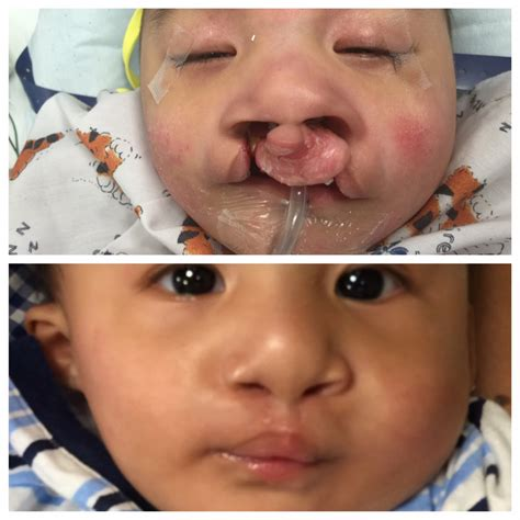 Bilateral Cleft Lip Pediatric Plastic Surgery Ny