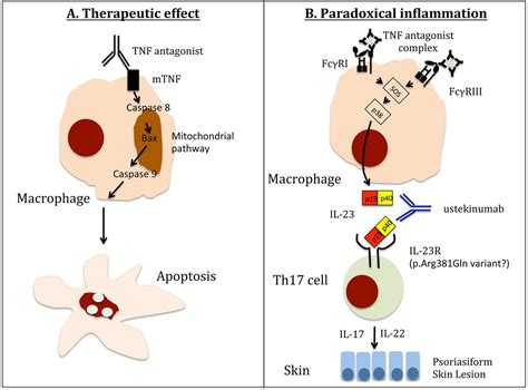 Anti-tnf And Skin Inflammation In Ibd