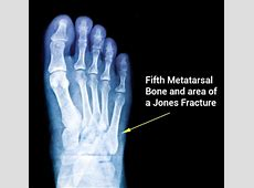 Jones Fracture Symptoms, Causes, Treatments Surgery and