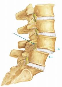 Лечение остеохондроза шейного отдела дексаметазоном
