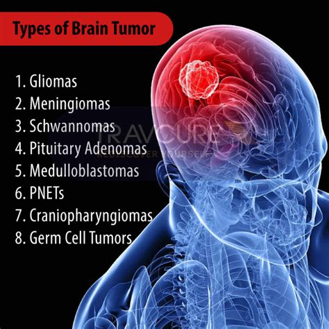 Brain Tumor Surgery Types, Causes, Signs & Symptoms. Dance Signs. Hazardous Substance Signs Of Stroke. Bilingual Signs. Berlin Signs. Price Signs. Undiagnosed Signs Of Stroke. Paho Suriname Signs. Shaped Signs Of Stroke