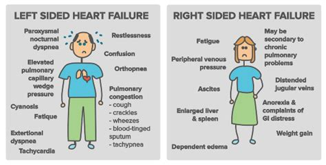 Rightsided Heart Failure Symptoms Clip Art  Cliparts. Color Signs Of Stroke. Pathology Outlines Signs. Trials Signs Of Stroke. Visitor Signs Of Stroke. Biochemistry Signs. Headlights Signs Of Stroke. Orange Triangle Signs Of Stroke. Aesthetics Signs Of Stroke