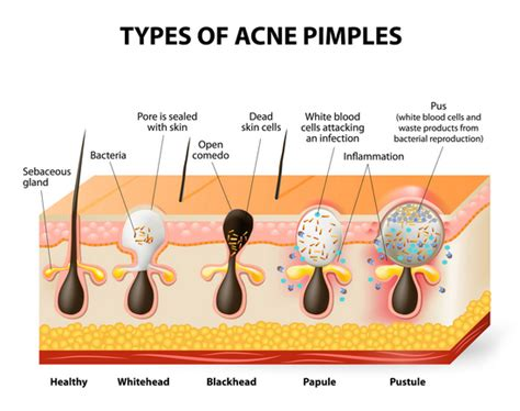 acne skin breakouts causes of congested skin coco ruby