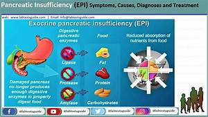 Pancreatic Insufficiency  Epi  Symptoms  Causes  Diagnoses