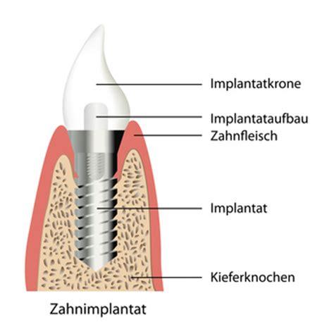 Implantate Gesundheitsportal