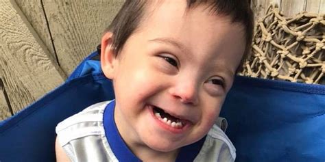 My Child With Down Syndrome Was Also Diagnosed With ...