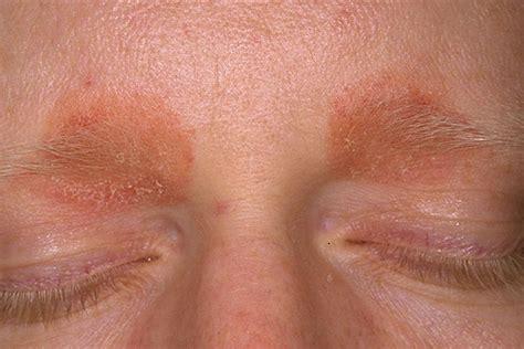 Ontstoken ooglid : ooglidontsteking