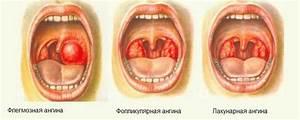 Причины появления боли в суставах