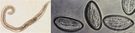 a pinworms megfertőződnek)