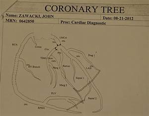 Wit U0026 39 S End  Coronary Tree