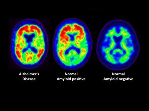 Amyloid Imaging: What Is Its Role?