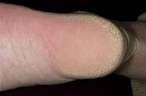 Грибок на ступнях ног лечение мази