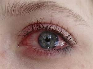 accurate, blue eyes, cry, eye, red - image #4038061 by ...
